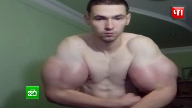 Люди с липовыми мышцами которые зашли слишком далеко